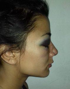 Plottier: Denuncian a la policía neuquina por agresión a dos jóvenes