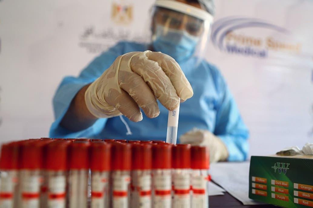 Estudian la respuesta del sistema inmune al coronavirus